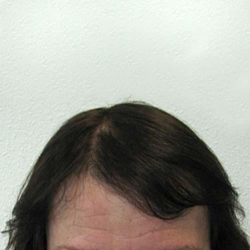 Haartransplantatie bij vrouw na HSI-methode