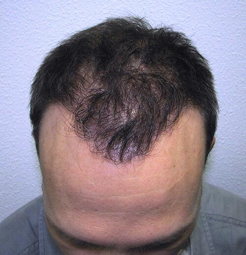 Haargrens na haartransplantatie